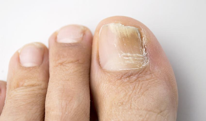 Качественное средство от грибка ногтей Нагирил по доступной цене